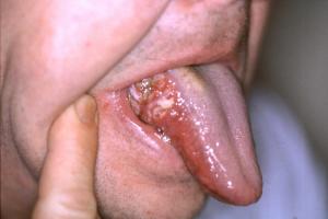 dolor en la lengua
