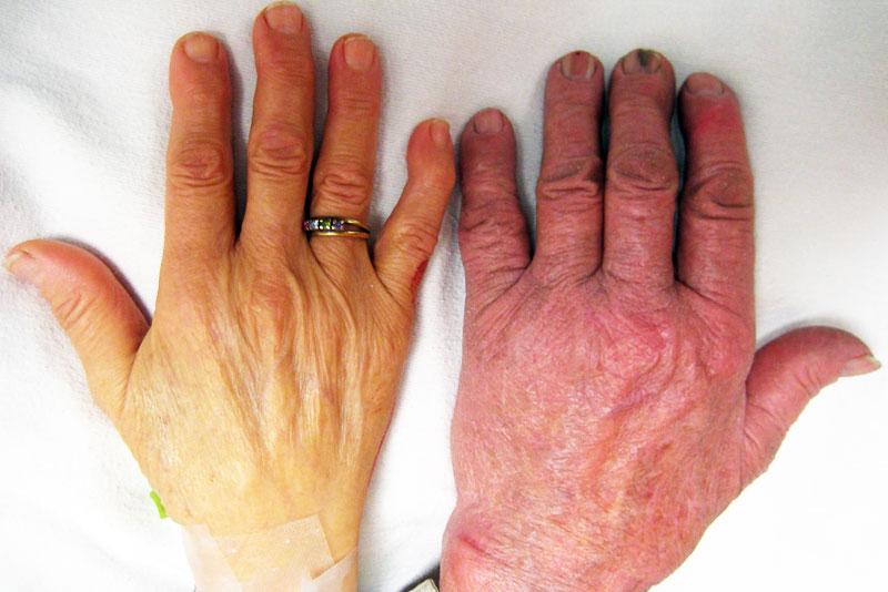 10 remedios caseros para los métodos naturales Anemia- fácil de ...