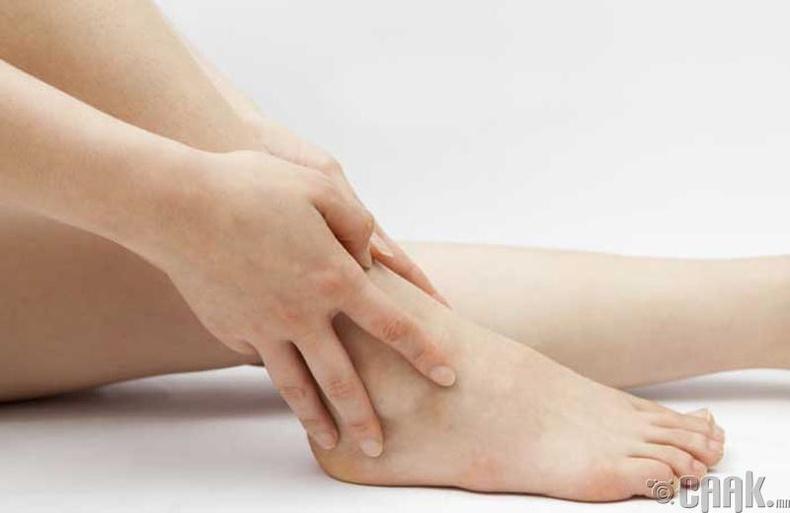 remedios caseros para la hinchazón de pies