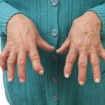 7 ejercicios de mano para aliviar el dolor de artritis