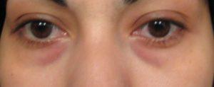 hinchazon-debajo-de-los-ojos