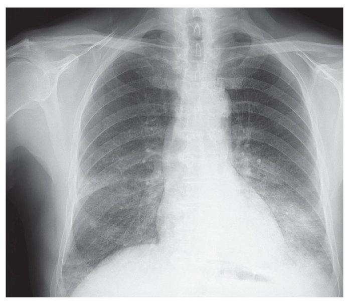 consolidacion-pulmonar
