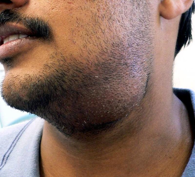 glandula-parotida-hinchazon