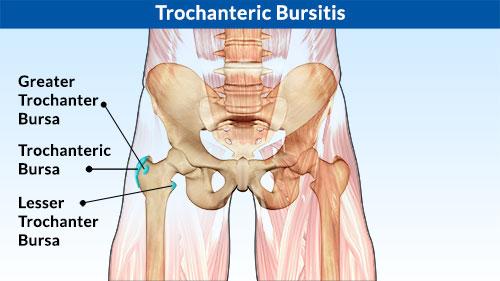 trocanter-bursitis