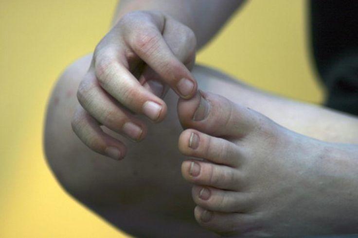 dedos-entumecidos