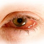hinchado del globo del ojo