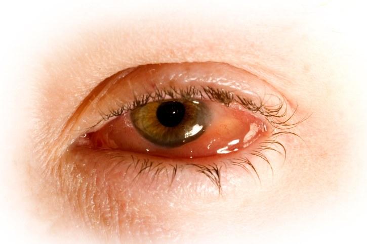 globo-ocular-hinchado