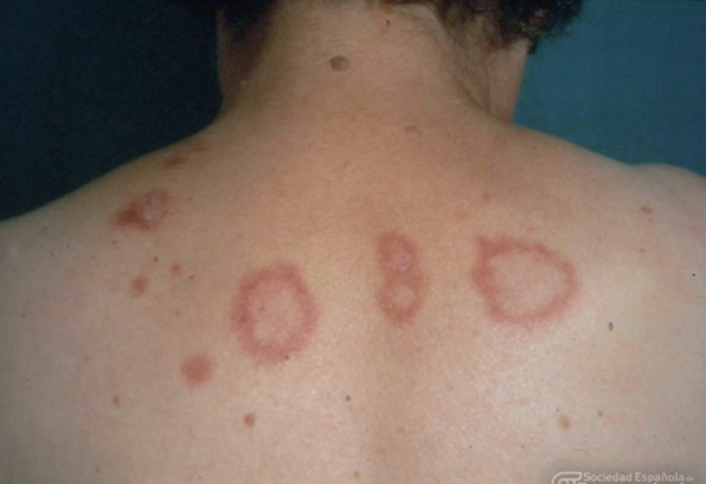 lupus-erupcion
