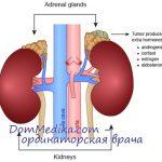 adrenal-adenoma
