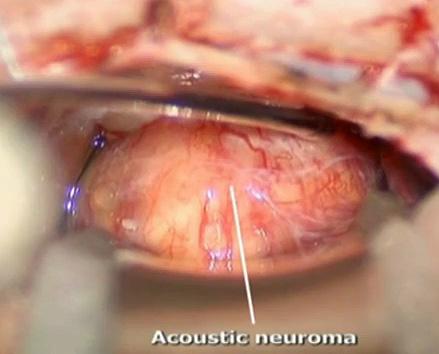 neuroma-acustico