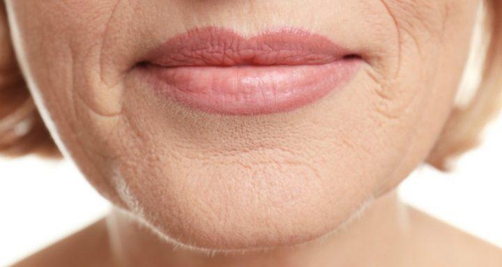 contraccion de labios