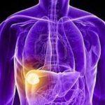 localizacion-del-dolor-hepatico
