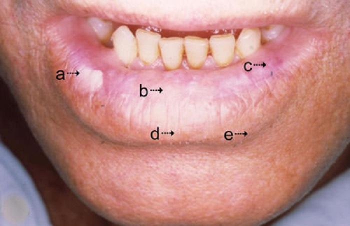queilitis-actinica