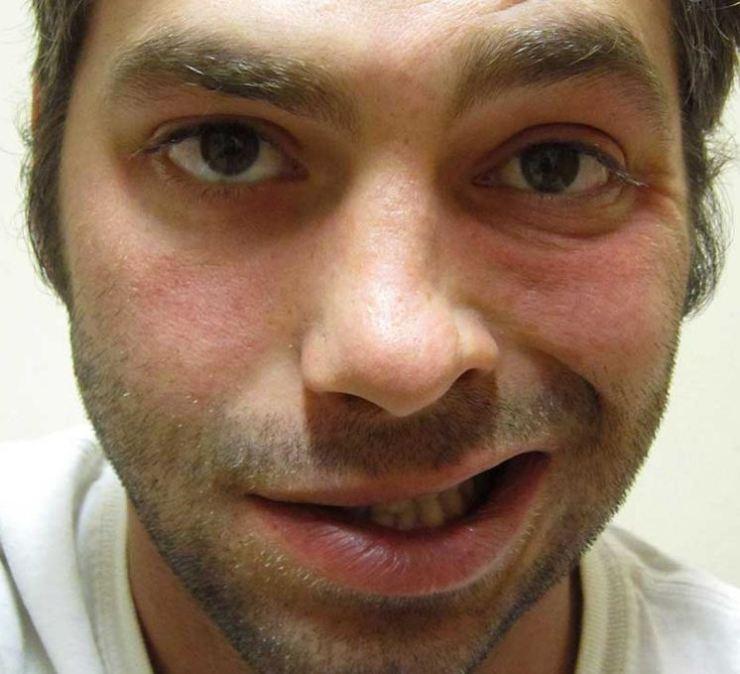 sindrome-zellweger