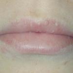 Las manchas blancas en los labios