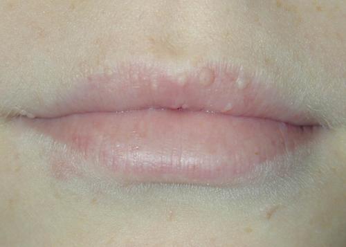 manchas-blancas-en-los-labios