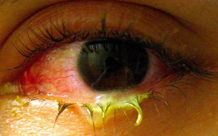 mucosidad-en-los-ojos