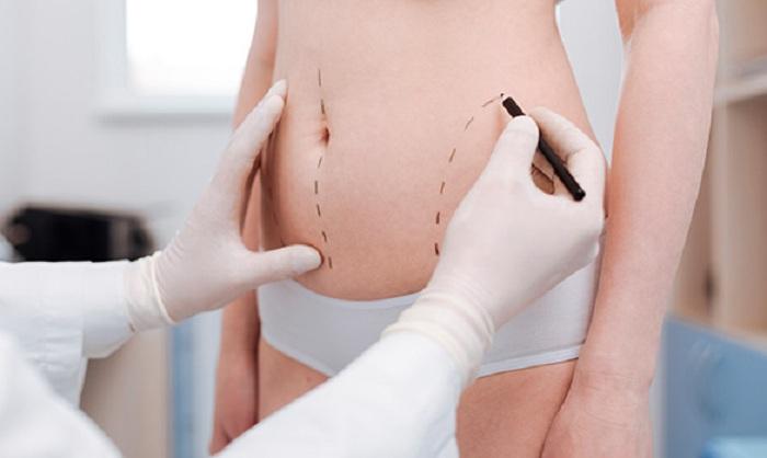 cirugia-bariatrica