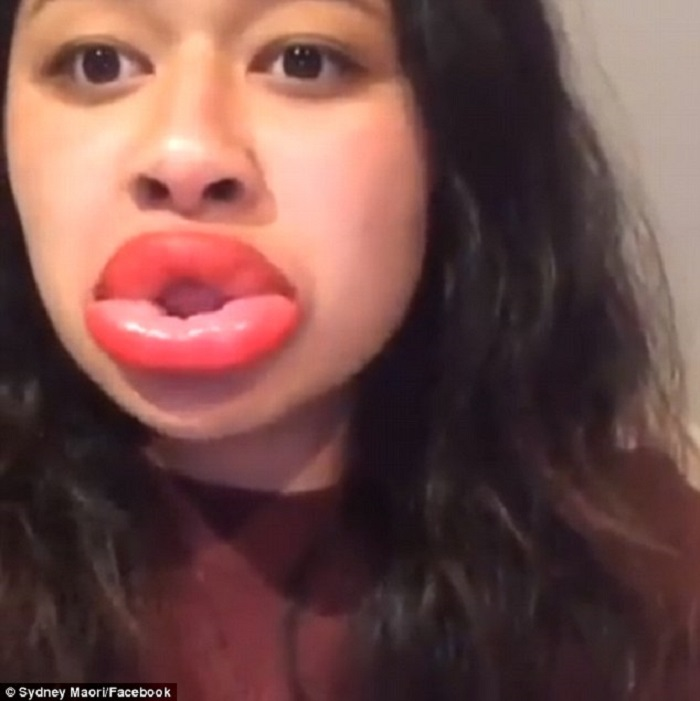 labios-hinchadosa