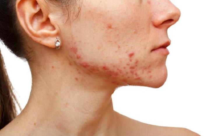 manuka-miel-por-acne