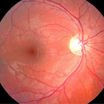 edema-corneal