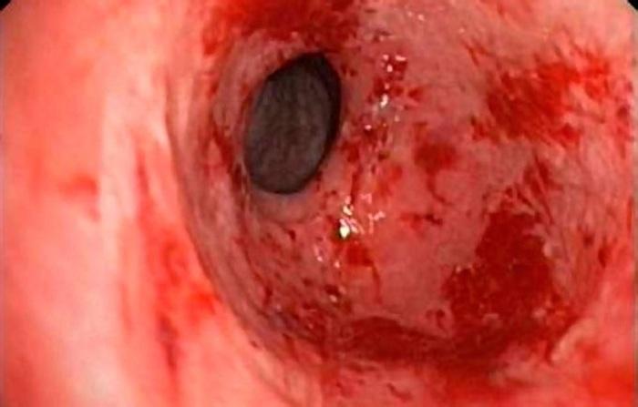 gastritis-erosiva