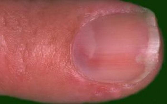 glomus-tumor