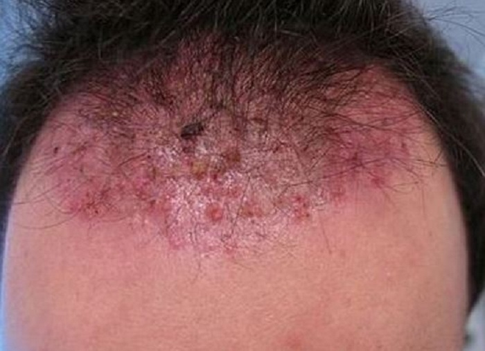 itchy-bumps-on-scalp