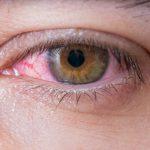 Herpes en los ojos