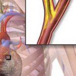 enfermedad-microvascular-isquemica