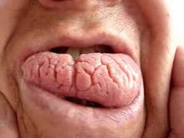 lengua-escrotal