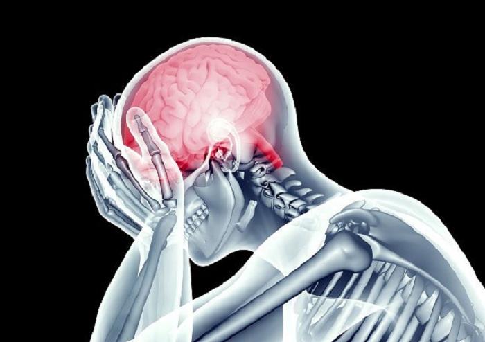 los-coagulos-sanguineos-en-el-cerebro