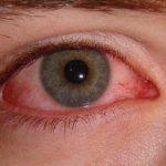 Coloración amarillenta de los ojos