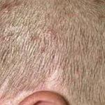 Ronchas y picazón en el cuero cabelludo