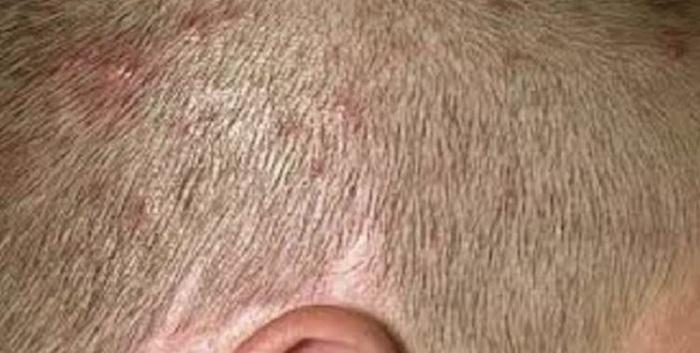 picazón en el cuero cabelludo