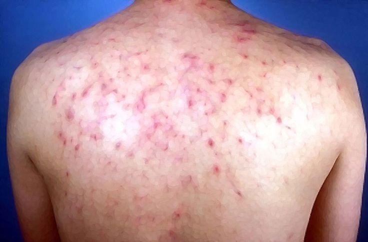pityrosporum-foliculitis