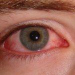 Mucosidad en los ojos