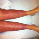 Úlcera por estasis venosa