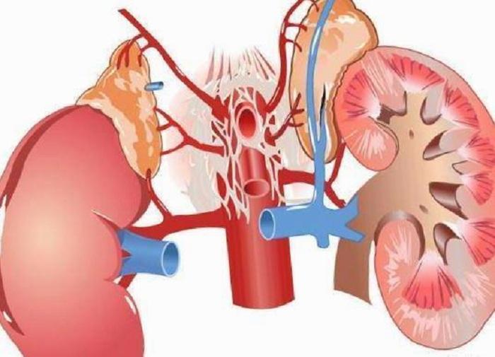 tumor-de-glandula-suprarrenal