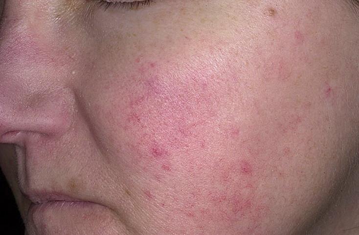 viral-exantema