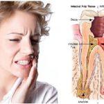Aceite de clavo para el dolor de dientes
