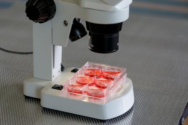 Alto RDW SD y RDW CV en el análisis de sangre