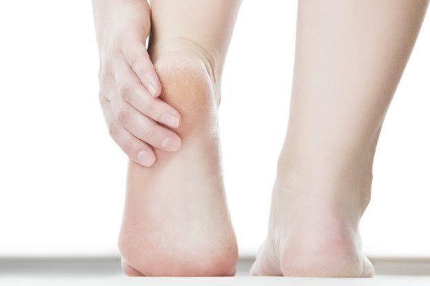 Ampolla en la parte inferior del pie