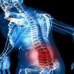 Analgésicos para el dolor de espalda
