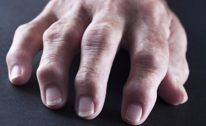 Artritis reumatoidea causas síntomas y tratamiento