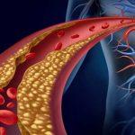 Cómo reducir los niveles de triglicéridos