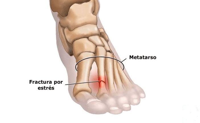 Cómo se siente una fractura por estrés en el pie