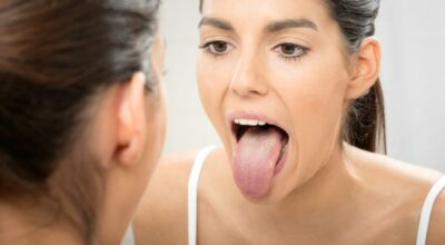 Cómo deshacerse de las piedras amígdalas