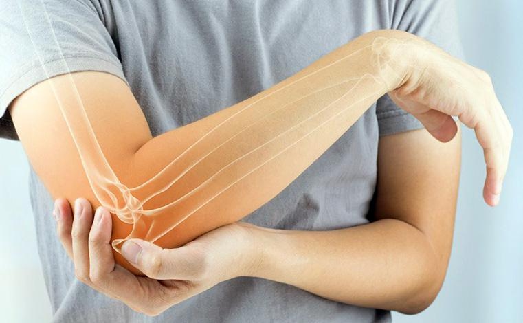 Cuál es la mejor comida y dieta para la osteoartritis