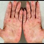 Cuáles son los síntomas del lupus